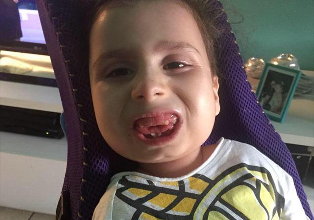 9098278857 E' morta Bea Naso, ribattezzata la bambina di pietra a causa di una  malattia che le aveva calcificato le articolazioni - Famiglia Cristiana